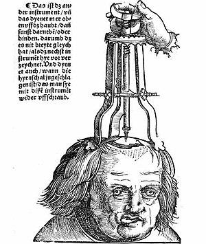 Behandlung einer Schädelwunde (Treatment of a ...