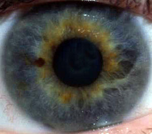 Ojo Azul, Blue Eye