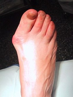 Big Toe Foot Pain