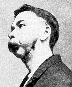 Maladie Des Os Qui S'effritent : maladie, s'effritent, Ostéonécrose, Maxillaire, Wikipédia