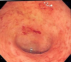 Ulcerative colitis