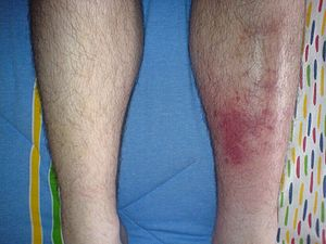 Cellulitis case, left shin infection.