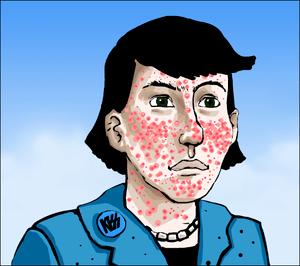 Acne vulgaris ill artlibre jn