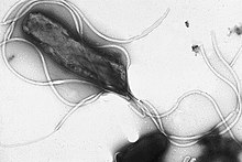 Helicobacter pylori electron micrograph, showing multiple flagella on the cell surface