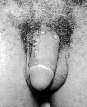 English: Chancres on the penile shaft due to a...