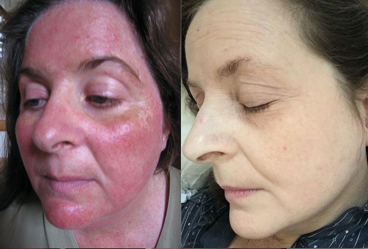 Too Faced Cosmetics Wikipedia
