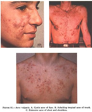 English: Acne Vulgaris: A: Cystic acne on the ...