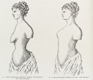 File:2 illustrations emphasing the importance of chest musculature Wellcome L0038403.jpg