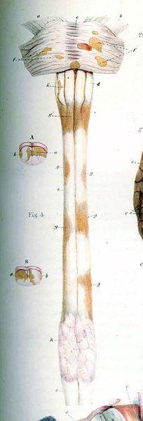 File:Carswell-Multiple Sclerosis.jpg