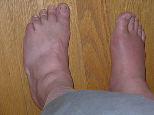 Gout in right big toe, with advanced swelling