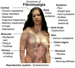 English: Common signs and symptoms of fibromya...