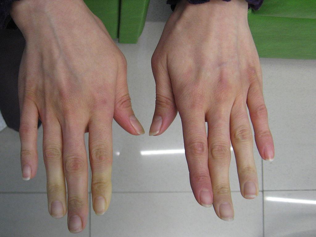 File:Secondary Raynaud's in Sjögren's syndrome 2.JPG ...
