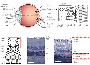 diagram of artificial eye car stereo wiring pioneer retinal implant wikipedia the retina and location various implants layers from bottom to top pigment epithelium rpe