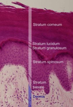 Epidermal layers.png