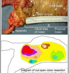 colon polyp diagram [ 1200 x 1837 Pixel ]