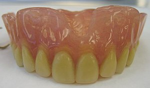 A maxillary denture.