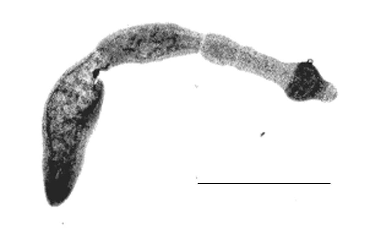 hight resolution of labeled diagram of trichinella