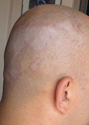 Picture of Seborrhoeic Dermatitis.