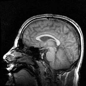 Magnetic Resonance Imaging - Human brain side view
