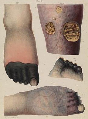 Hands Turning Black Symptoms