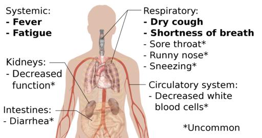 Symptoms of coronavirus disease 2019 (cropped)