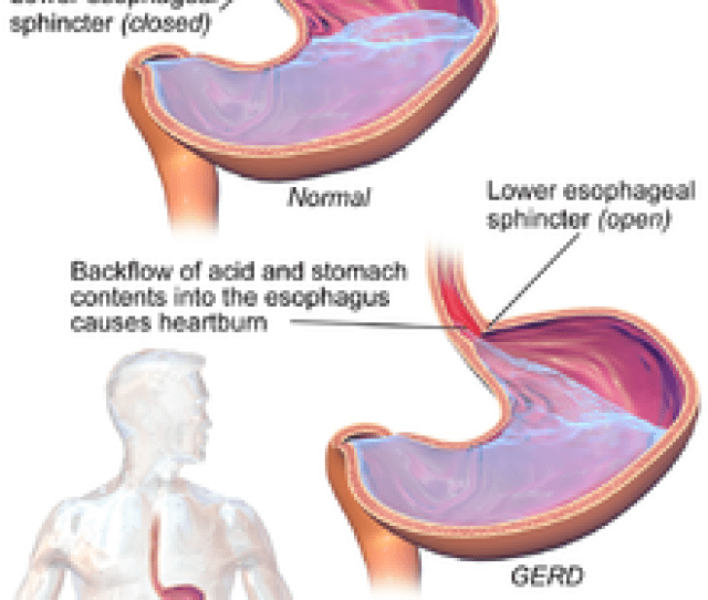 A Comparison Of A Healthy Condition To Gerd