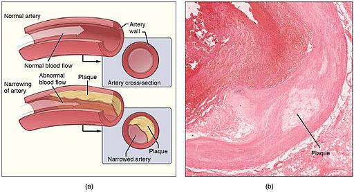 2113ab Atherosclerosis