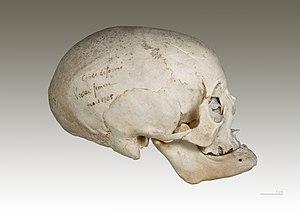 Homo sapiens sapiens - Deliberate deformity of...