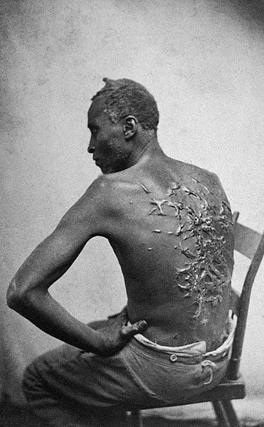 FileScourged back by McPherson  Oliver 1863 retouched