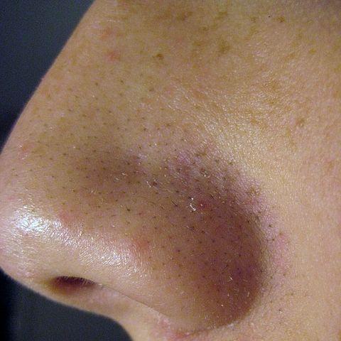 A nose with pores