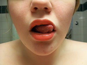 English: Lips and tongue of a 19 years old Swe...