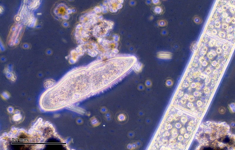 File:Paramecium caudatum (248 06) Native preparation.jpg