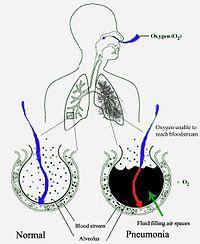 Pneumonia : Quiz (The Full Wiki)