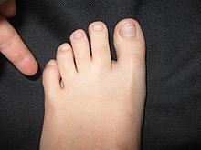 腳趾尾 - 維基百科,自由嘅百科全書