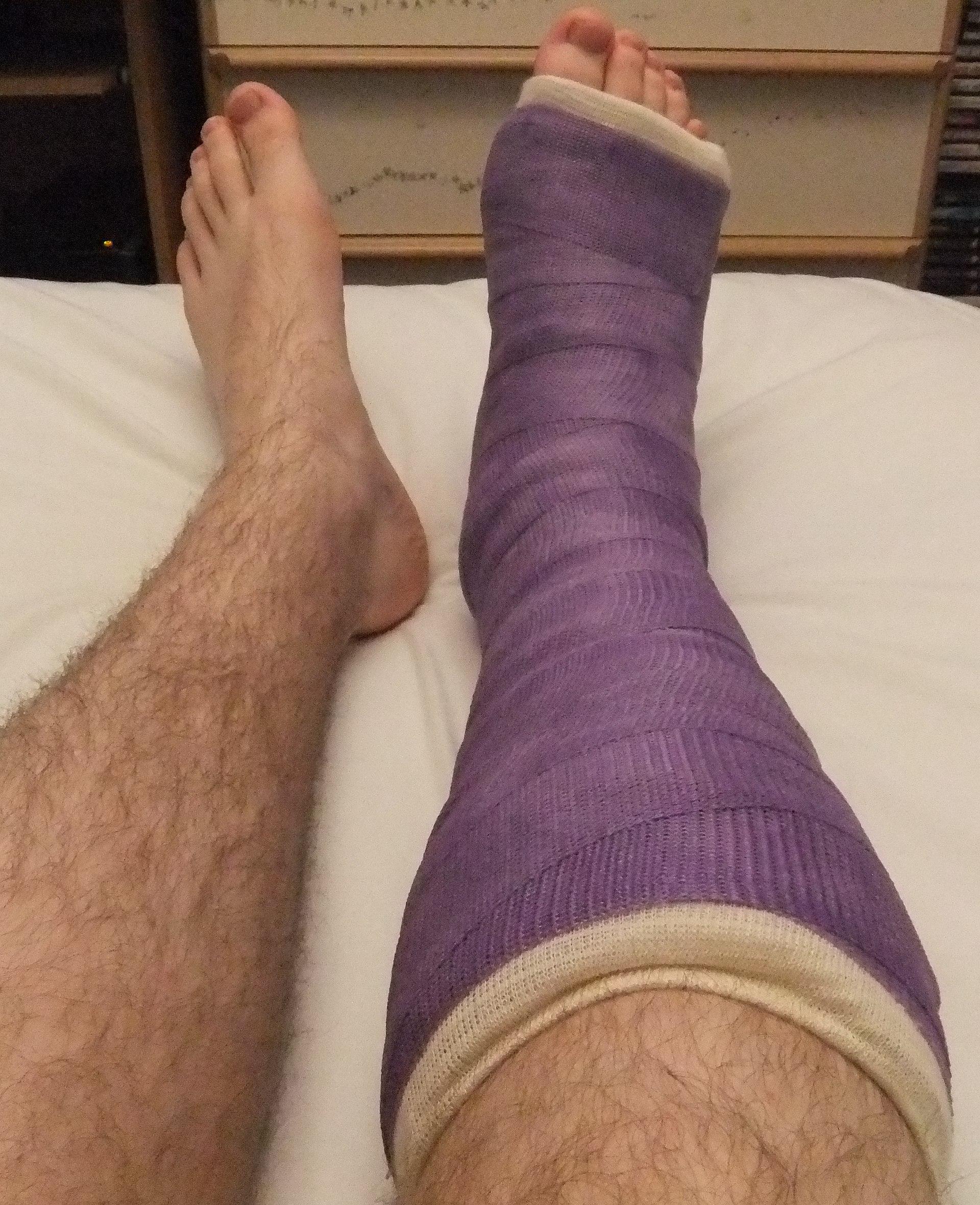 Orthopedic cast  Wikipedia
