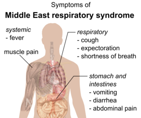 Middle East respiratory syndrome - Wikipedia