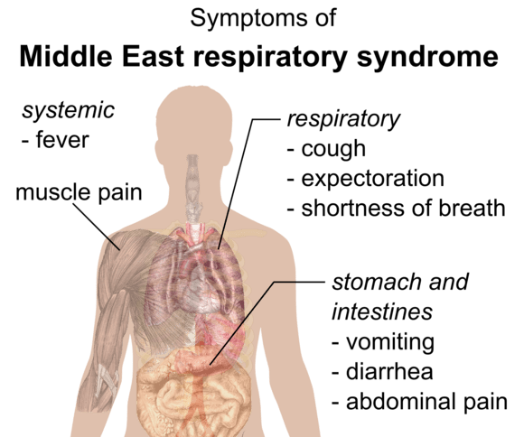 Middle East respiratory syndrome - Wikiwand