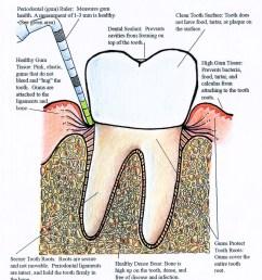 tooth bone diagram [ 2084 x 2669 Pixel ]
