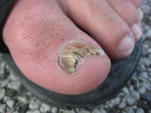 nasty nail fungus, consequences of no toenail fungus treatment, how to get rid of nail fungus, causes of toenail fungus, why do I have nail fungus