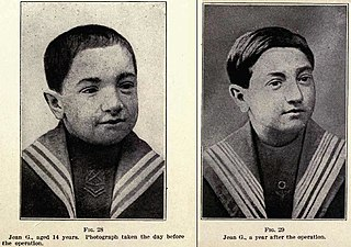 Pre-1920s 14-year old boy (dullard) having his father's glands grafted onto his own testicles; (right) Same boy at age 15.