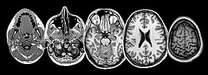 Neuroimaging sheds light on the seat of suffering