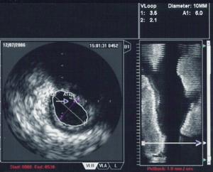 An IVUS image of the ostial left main coronary...
