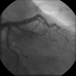 Coronary angiogram of a man