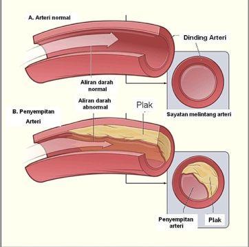 Berkas:Diagram aterosklerosis.jpg
