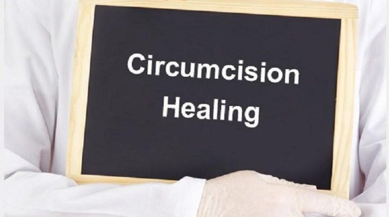 Circumcision Method