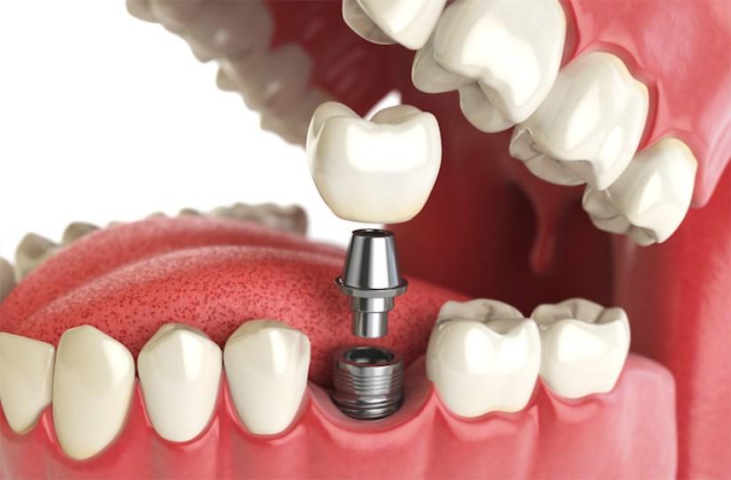 Recurrent Pericoronitis teeth