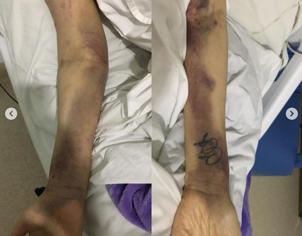 Bruises on arms caused by needle sticks