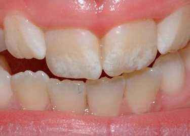 Dentes de leite, sorrisos bonitos e saudáveis. O que fazer para prevenir Cáries Dentárias?