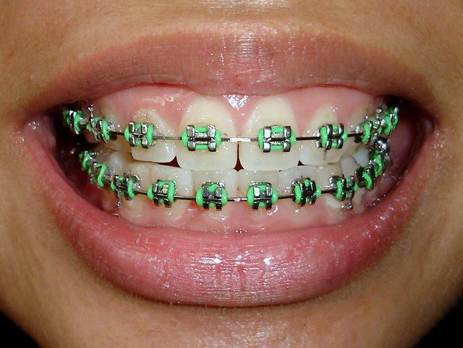 What Colour Train Track Braces Should I Get Personality