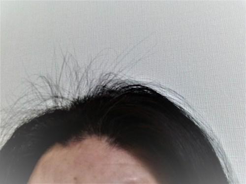 生え際の髪がピンピン